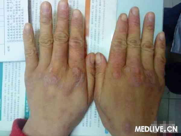 面颈部及手足皮肤红斑
