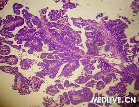 经免疫组织化学染色