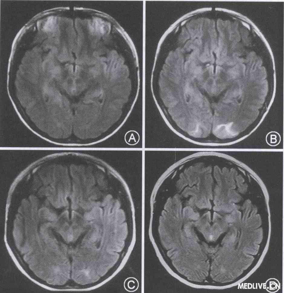 伴癫痫和可逆性枕叶损害的Leber遗传性视神经病一例