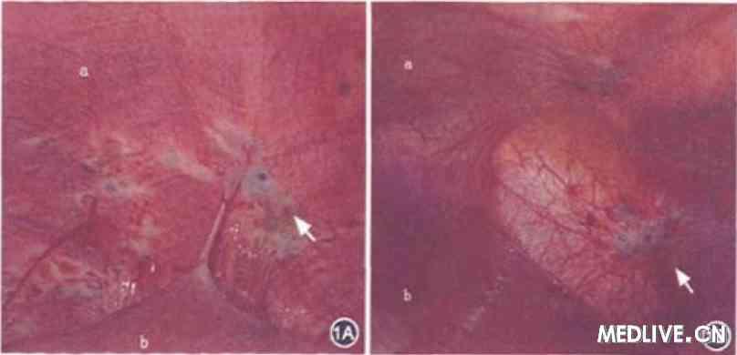 膈肌 (a)、肝脏(b);膈肌左、右两侧均可见内异症病灶(u),图片