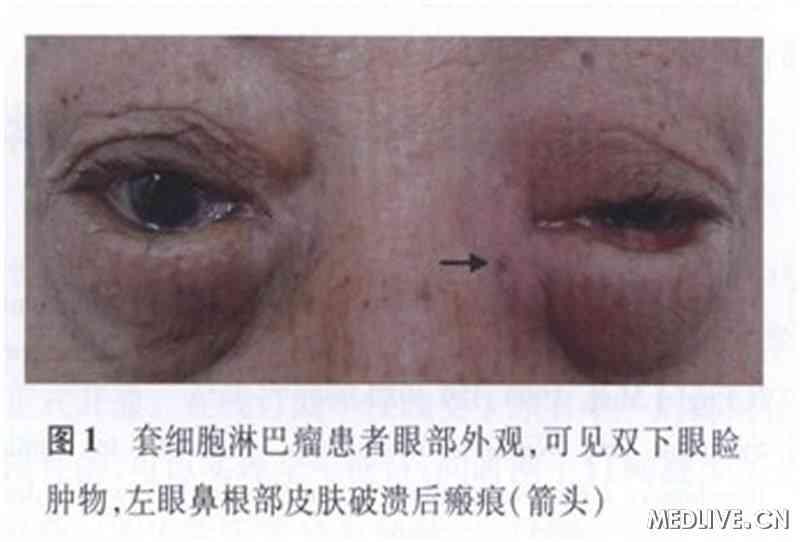 滑车上淋巴结-双眼睑肿物进行性加重近半年