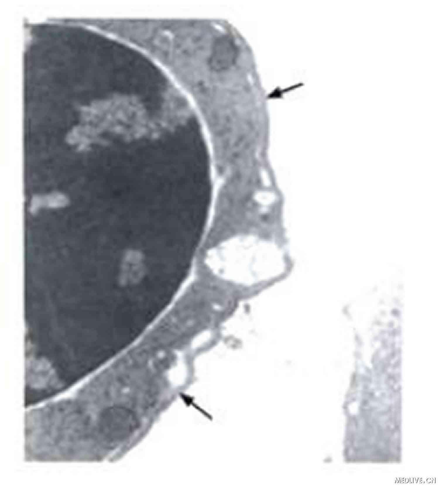 粒细胞超微结构未见异常