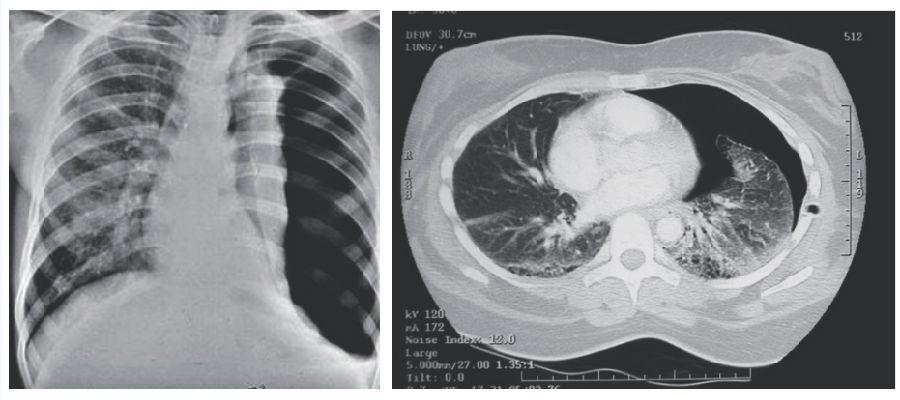 信息中心 胸部ct片共有几张片子     为了解决用户可能碰到关于