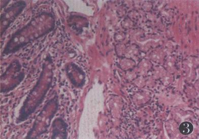 经典病例:巨大十二指肠腺瘤一例