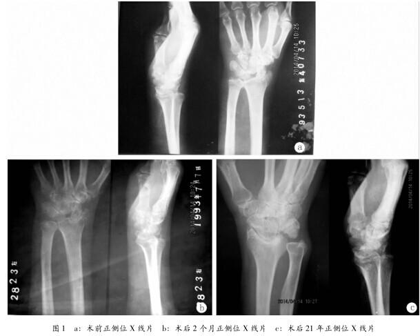 手腕关节骨头结构图