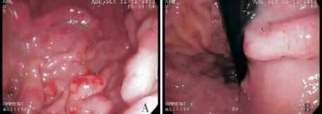 罕见:儿童蛋白丢失性胃病1