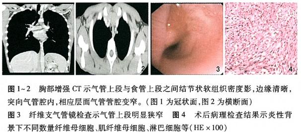儿童气管炎性肌纤维母细胞瘤1例