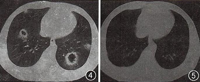 胸部ct( 肺部 )图片