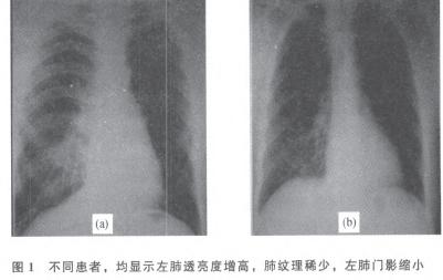 ,左肺透亮度较右侧明显增高,肺血管纹理稀疏;左肺下叶支气管呈图片