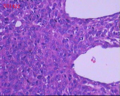 显微镜下的模糊细胞展示