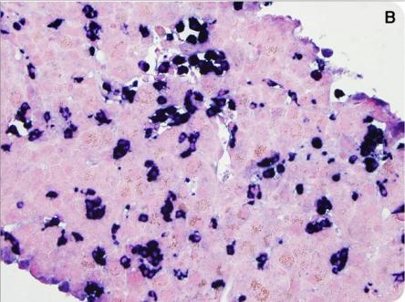 骨髓与腹部脂肪的刚果红染色结果