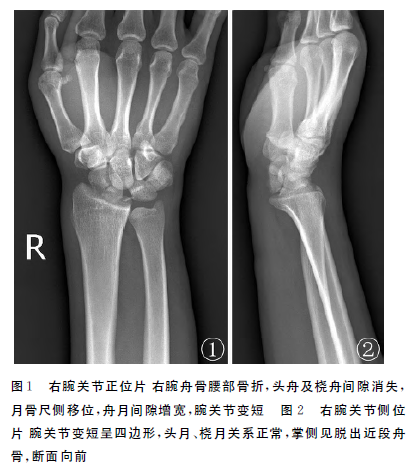 腕舟骨骨折近段掌侧脱位1例