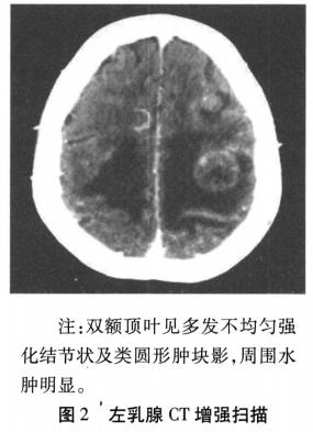 乳腺炎性肌纤维母细胞瘤影像表现1例