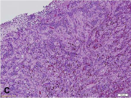 免疫组化染色提示:在结构清晰的毛细血管内皮细胞上