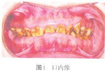 全口牙釉质发育不全伴颞下颌关节紊乱病1例报告