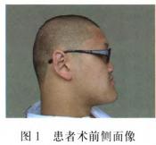 先天性无牙颌患者的正颌外科治疗