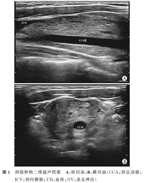 女性颈部肿物,如何诊断