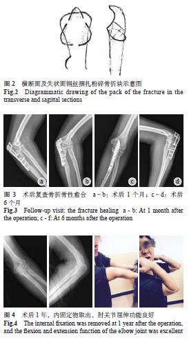 尺骨解剖板及钢丝治疗鹰嘴合并冠突骨折一例