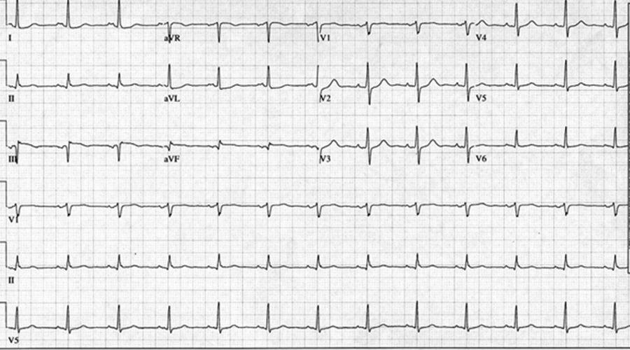 """3:""""修正""""后的心电图-识图解惑 有趣的 异常 心电图"""