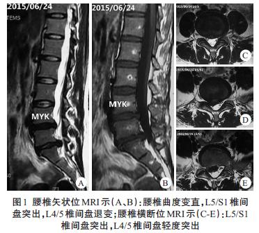 腰椎间盘突出自发性重吸收伴邻近节段突出加重一例