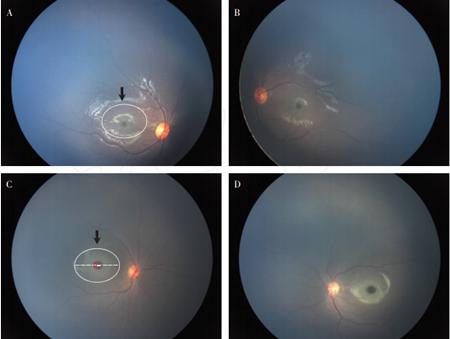 匹克病合并双眼眼底黄斑异常患儿眼底照相. A 病例1 右眼底照相(