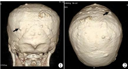 后面观,头颅三维ct片示:脑颅骨颅骨表面凹凸不整,颅骨外板,板障密度不