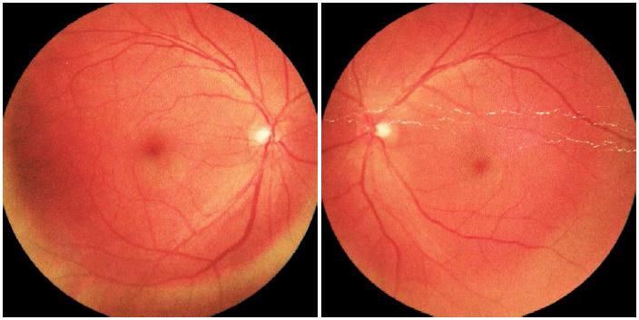 注:眼底照相显示A/V=1/2,动脉静脉交叉压迹(+),呈慢性动脉粥样
