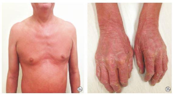 皮肤科情况: 全身弥漫潮红斑,伴少量脱屑( 图 1a) ; 掌跖角化脱屑