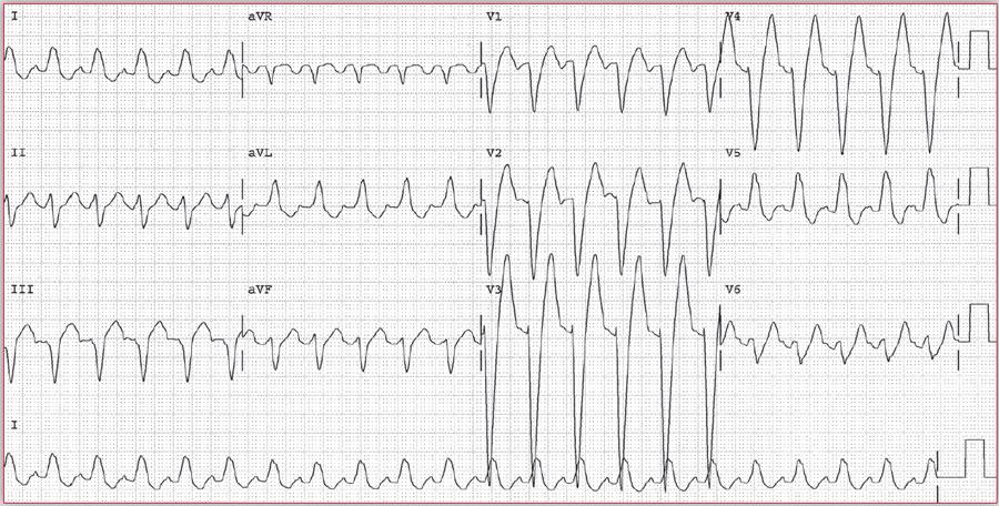 根据这份心电图,能诊断冠心病吗?