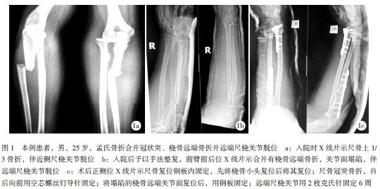 但其治疗效果通常较差.BadoII型和合并桡骨头及尺骨冠突骨折者预示