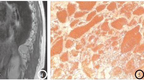 后纵隔海绵状血管瘤1例
