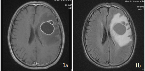 腺样型胶质母细胞瘤