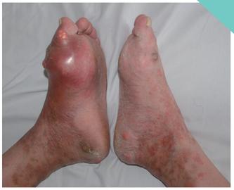 反复左侧第一跖趾关节肿痛8年